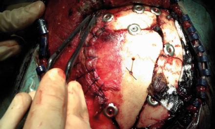 Trauma cranio-encefalico:<BR>fra dubbi e certezze