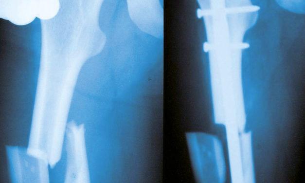 Le fratture nel femore dell'anziano.<BR>Un problema medico e sociale