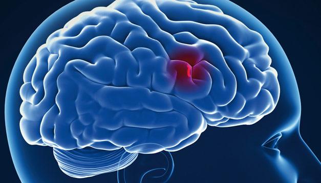 I progressi della neurologia
