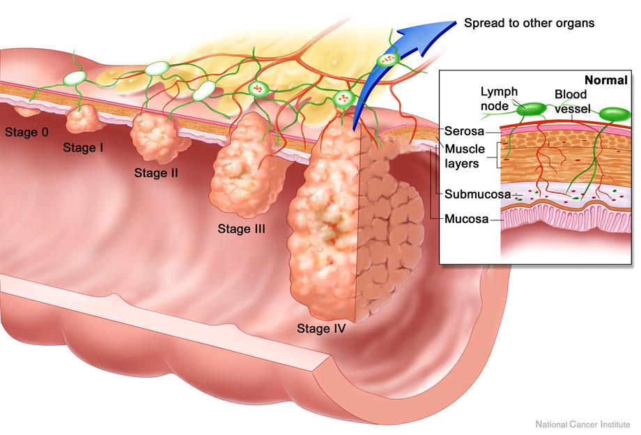 Carcinoma colorettale:<BR>Pisa centro di eccellenza